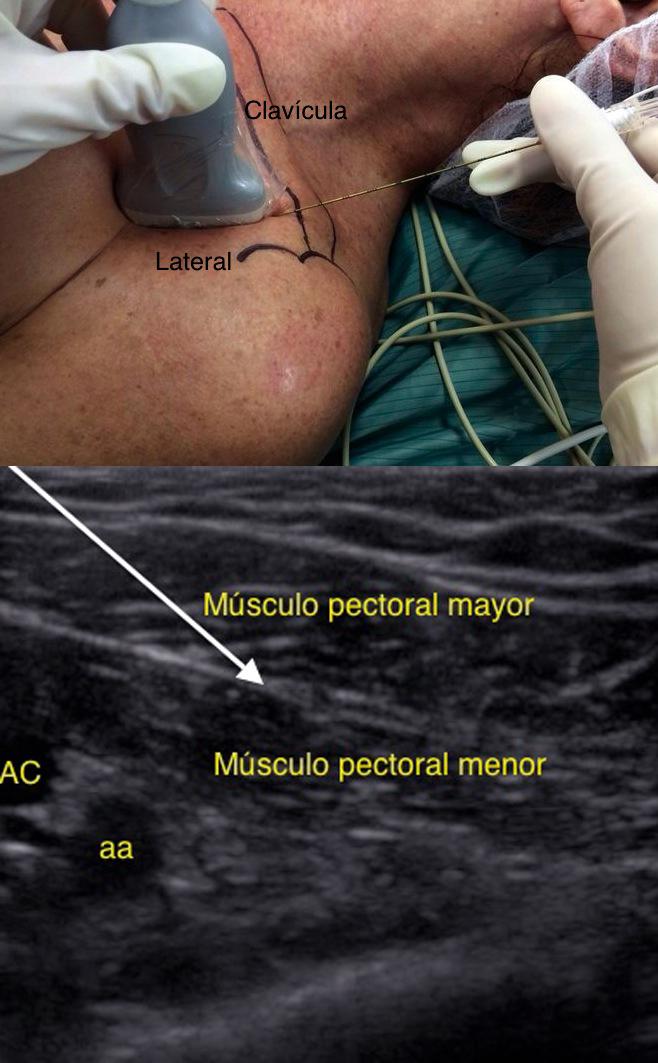 Bloqueos de Pared Torácica Bajo Visión Ecográfica Directa en Cirugía ...
